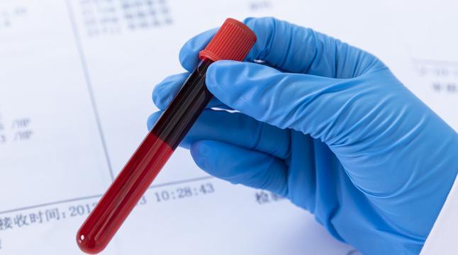 估值合理盈利改善 机构布局血制品行业