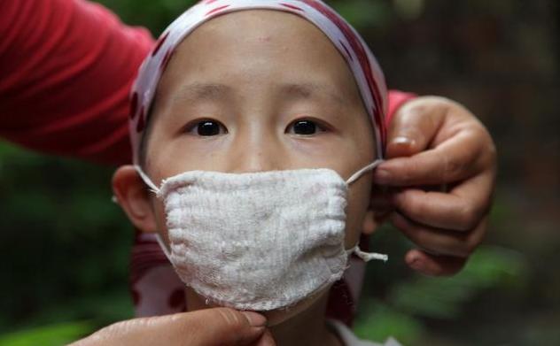 儿童肿瘤救治管理病种增加